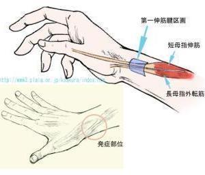 腱鞘炎とTFCC損傷