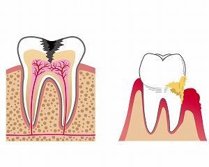 「歯周病(フラップ手術)」