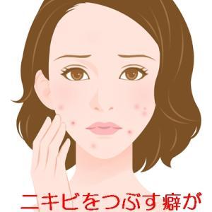 鼻の横のニキビ治らない私の困った悪習【ニキビをつぶす癖がどうしてもやめられない】