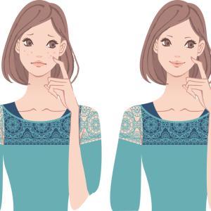 白ニキビ 赤ニキビ 治らない(;´Д`) 美容皮膚科でにきび治療したときの話