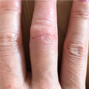 本日の手湿疹状態