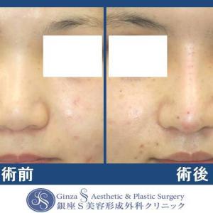 鼻の形成(24)鼻中隔延長術(肋軟骨)+ 鼻背への肋軟骨移植(プロテーゼ代用)