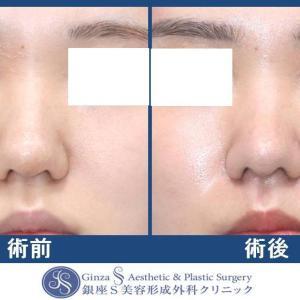 鼻の形成(25)鼻尖縮小術(ストラット III法)+ 耳介軟骨移植(鼻先・鼻背)