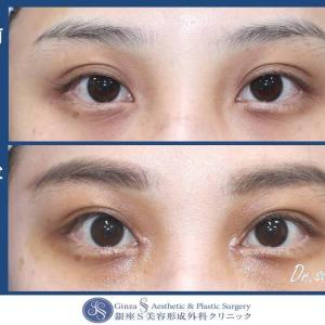 眼の形成(47)切らない眼瞼下垂(目力アップ)+目頭切開
