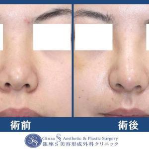 鼻の形成(26)鼻中隔延長術 + 鼻先耳介軟骨移植 + 鼻プロテーゼ + 鼻孔縁下降術