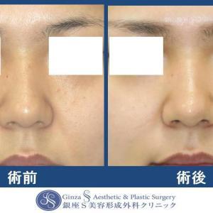鼻の形成(27)鼻尖部への耳介軟骨移植