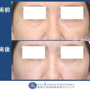 眼の形成(48)結膜脱脂 + 目の下クマ脂肪注入