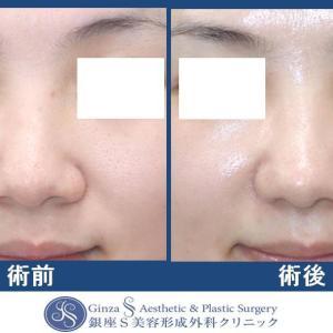 鼻の形成(28)鼻先部耳介軟骨移植 + 鼻孔縁下降術(軟骨移植) +  鼻翼縮小 & 皮弁法