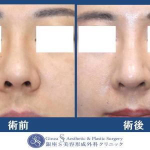 鼻の形成(31)他院修正:鼻中隔延長術(肋軟骨)+鼻先耳介軟骨移植+ハンプ削り+プロテーゼ入れ替え