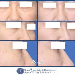眼の形成(54) マイクロ脱脂+目の下脂肪注入