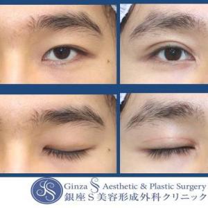 眼の形成(56)眼瞼下垂手術+目頭切開