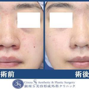 鼻の形成(39)鼻翼縮小術+皮弁形成術(小鼻縮小術)
