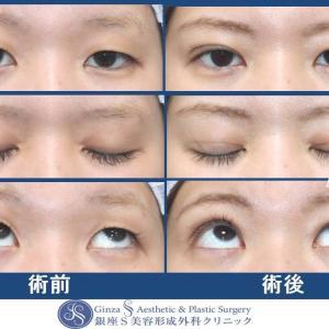 眼の形成(59)目力アップ(切らない下垂)+埋没法による二重形成