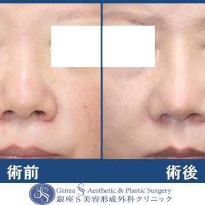 鼻の形成(40)鼻背の I 型プロテーゼ+鼻先への耳介軟骨移植