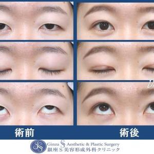 眼の形成(60)眼瞼下垂・二重 術後経過