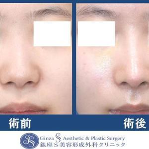 鼻の形成(41)鼻中隔延長術+耳介軟骨移植(鼻先)+鼻プロテーゼ