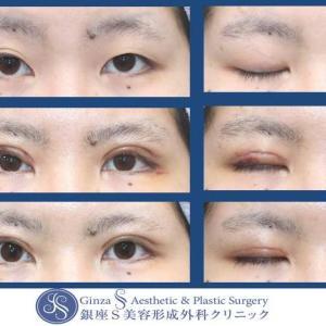 眼の形成(63) 眼瞼下垂(切開を伴う)短期の術後経過のご紹介