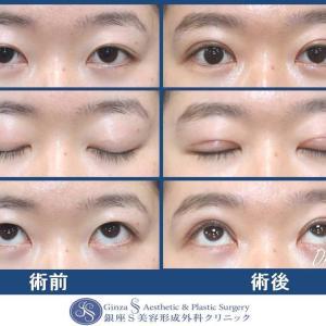 眼の形成(64)眼瞼下垂の手術(切開を伴う)短期の術後経過