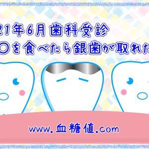 2021年6月歯科受診 〇〇を食べたら銀歯が取れた!!