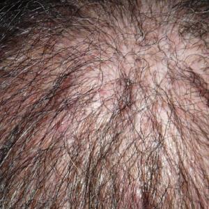 頭頂部が髪でうまるとイイナ ~ 自毛植毛後7ヶ月