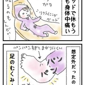 0ヶ月 産後の体調〜想定外のむくみ〜