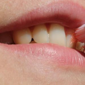 口腔内の汚れ落としにはプロポリンスがおすすめ