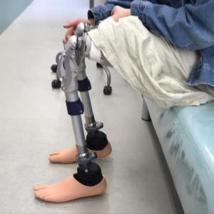 仮義足の調整確認