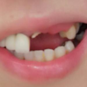 歯が入りました