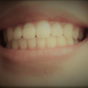 子どもの歯列矯正レポート。メリットとコストと期間は?