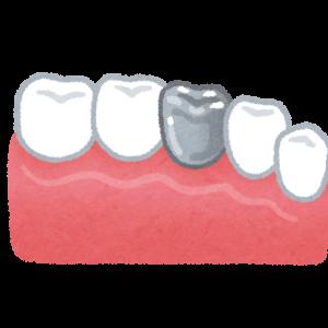 【そんなはず】友人の歯がオール銀歯でした