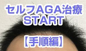 【セルフAGA治療01-2】 ~はじまりの1か月~ 施術手順だよ