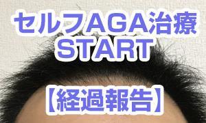 【セルフAGA治療01-3】 ~はじまりの1か月~ その結果は!
