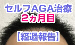 【セルフAGA治療02】 ~2ヵ月目 経過報告~