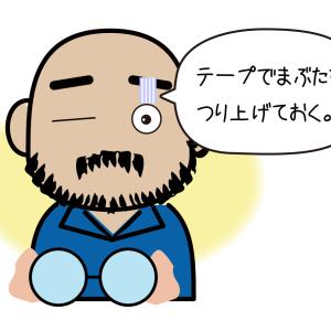 松本市でまぶたを切る〔1〕