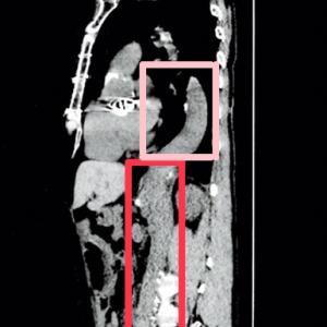 大動脈解離 B型 ⑫人生3回目の大動脈手術(胸腹部大動脈置換)