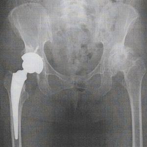 人工股関節置換手術後の画像とリハビリ効果