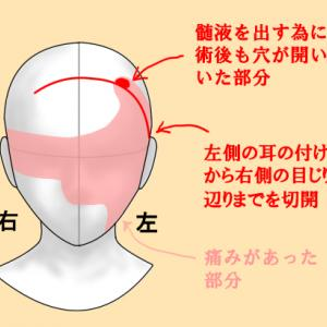 襲ってくる頭痛・顔面痛・目の奥の痛み