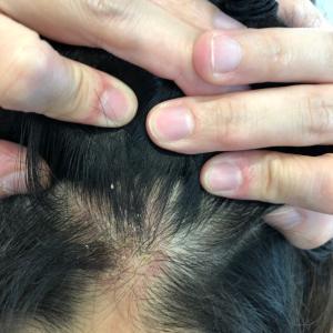 ストレスか…頭皮が悪化