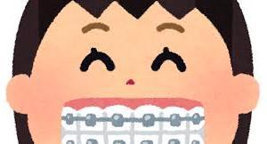 【オーストリア 歯科矯正】ついにリテーナー(裏側、永久)が壊れたので、歯医者さんに行ってきました