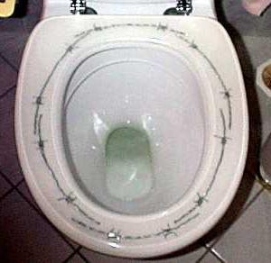 痛いトイレ