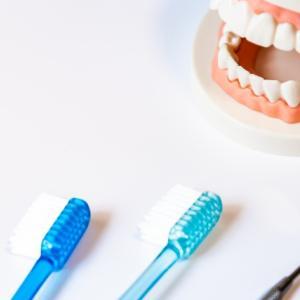 「備忘録」2年ぶりの歯科はどうだったか?この身体であと50年生きる