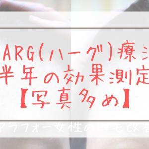 HARG(ハーグ)療法体験談 6回(半年)の効果【写真多め】