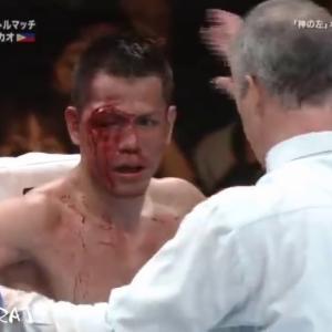 【神の左復活なるか!】山中慎介 KO集 2017年版 20試合 Shinsuke Yamanaka Ultimate KO Highlights