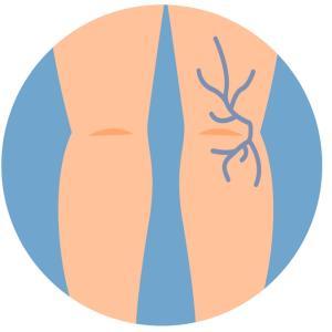 浮き出る青い血管!(原因と対処法)