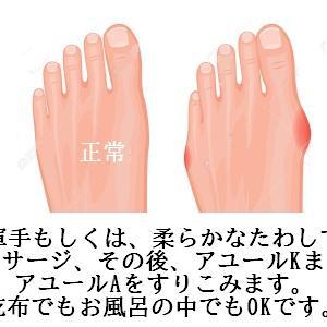 外反母趾の痛みはつらい