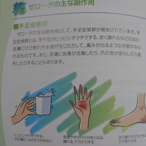私の抗がん剤「ゼローダ(Xeloda)」治療を支えてくれた阪神タイガース