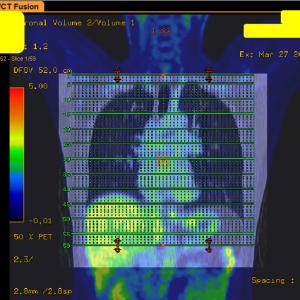 入手したCTやMRI検査画像を個人的に楽しむ方法