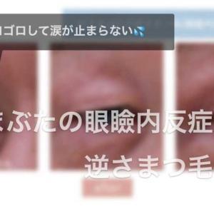 下眼瞼内反症とは。その問題点と、治療方法。最終手段は手術。