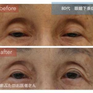 80歳以上でも眼瞼下垂手術は可能