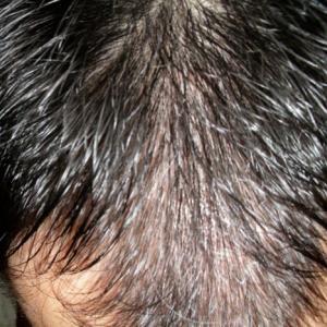 ミノタブなしの育毛は成功するのか? 結論⇒多分しない